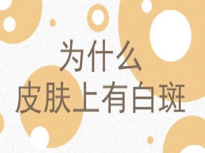 云南白癜风的病因有哪些