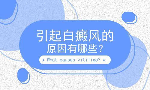 昆明白斑专科医院,白癜风发病诱因主要有哪些