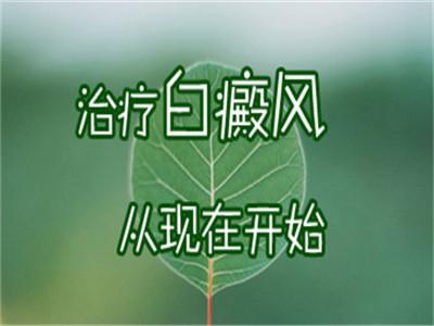 云南治疗白癜风讨教护国路