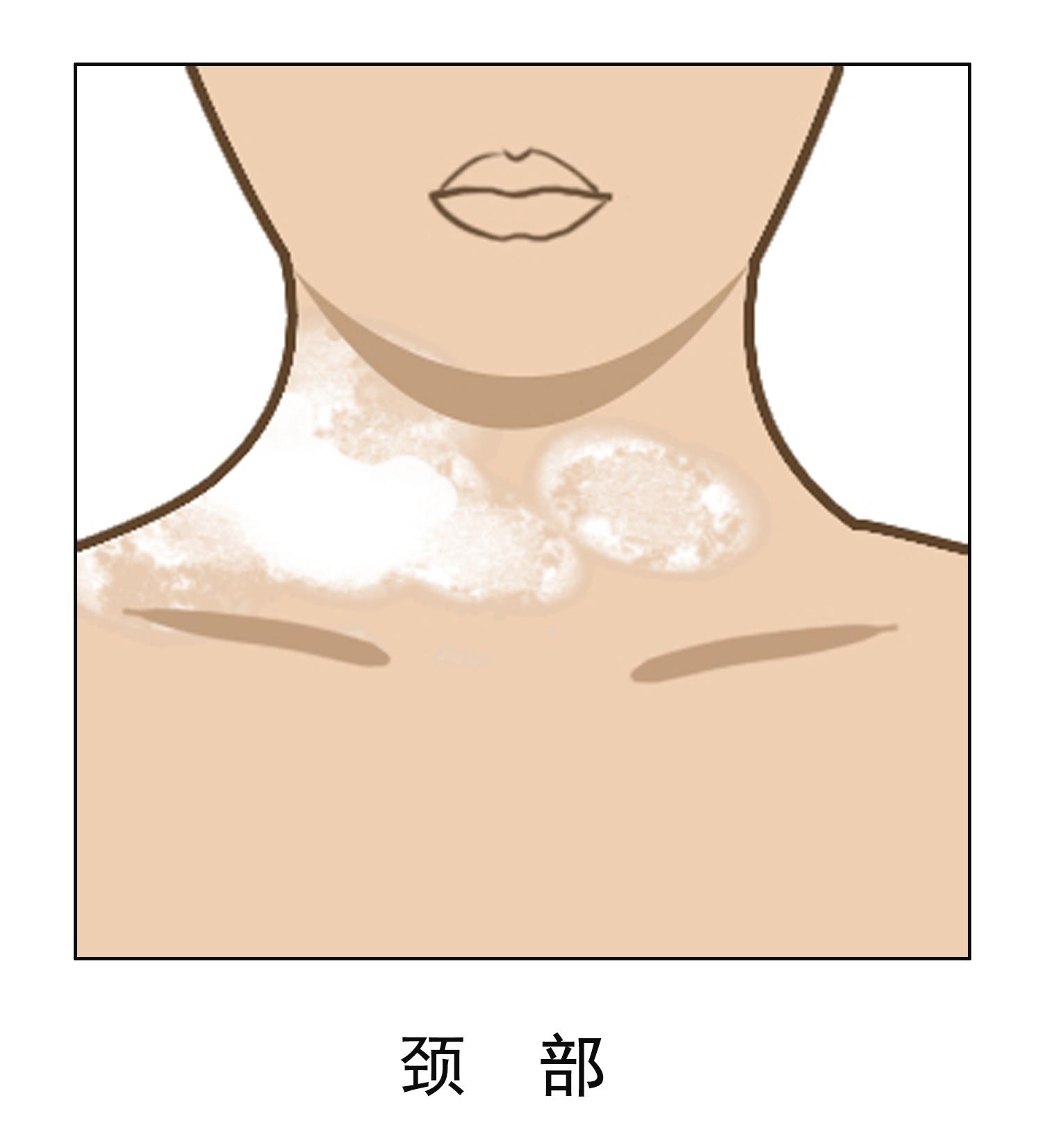 昆明白斑病的专科医院:颈部白癜风如何进行护理